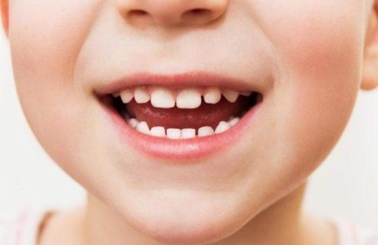 Tips Merawat Gigi Anak yang Baru Tumbuh agar Sehat Selalu